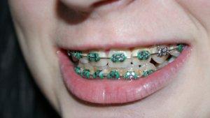 tooth braces